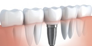 What are dental implants?