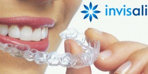 What are Invisalign?