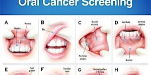 Everyone should acknowledge the importance of the regular oral cancer screening
