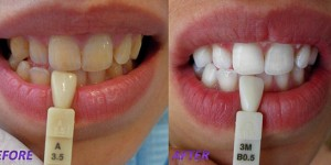 Possible side effects and contraindications for the teeth whitening